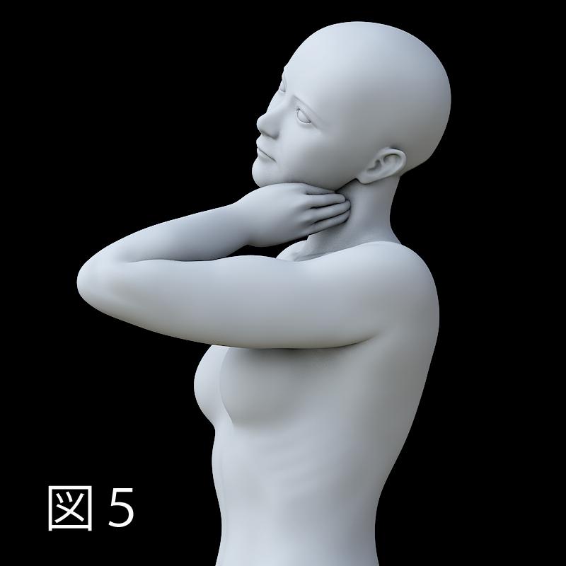 胸鎖乳突筋のリリース