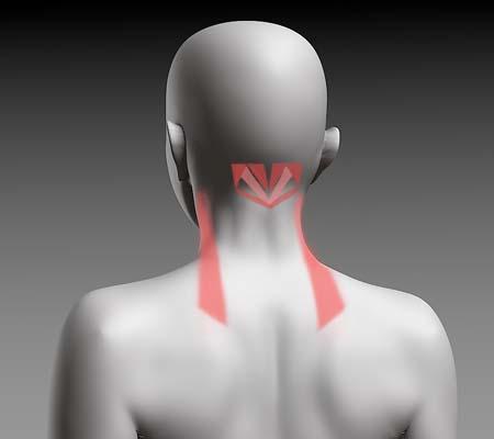 肩甲挙筋と後頭下筋群