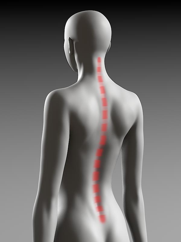 通常の背骨の湾曲